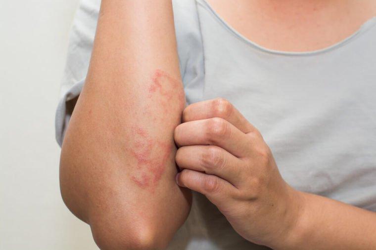 Tubuh Alergi Parfum - alergi vs sensitivitas.jpg