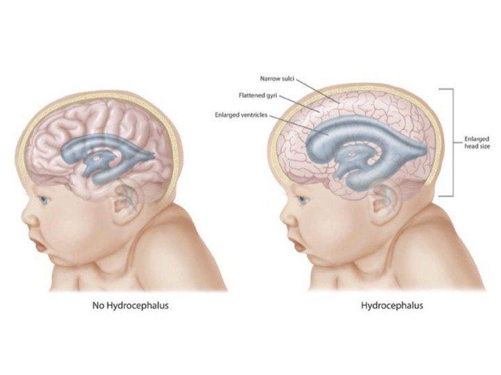 Ukuran Kepala Si Kecil Tergolong Besar Bisa jadi Si Kecil Alami Alexander Disease 4.jpg