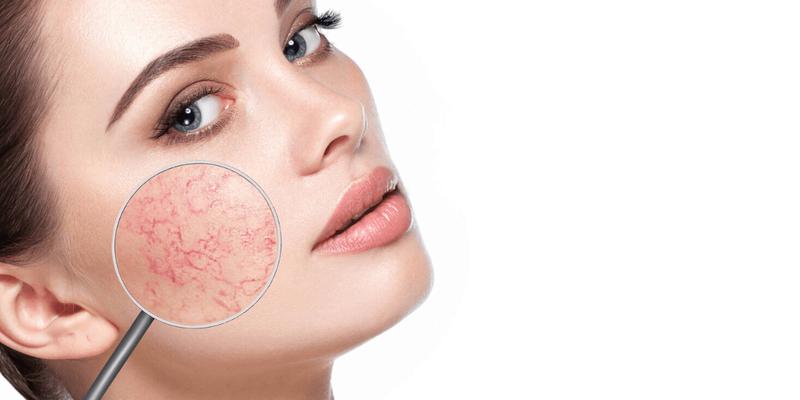 manfaat nianicinamide untuk wajah kering