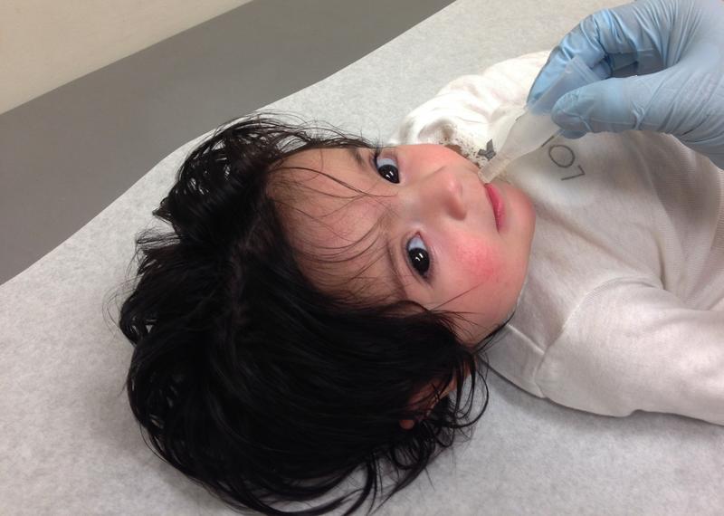 rotavirus penyebab diare