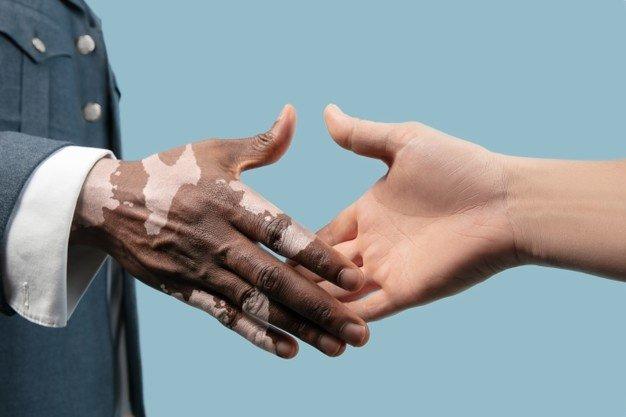 Vitiligo Operasi.jpg