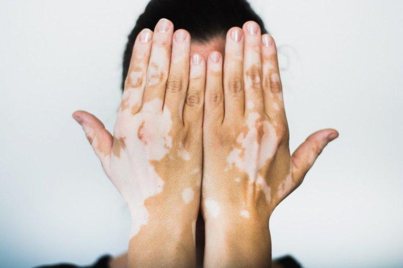 Vitiligo dan Ciri-cirinya.jpg