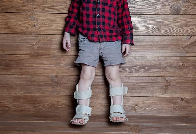 Wajib Tahu, Ini Faktor Risiko Rakitis Pada Bayi__-7.jpeg