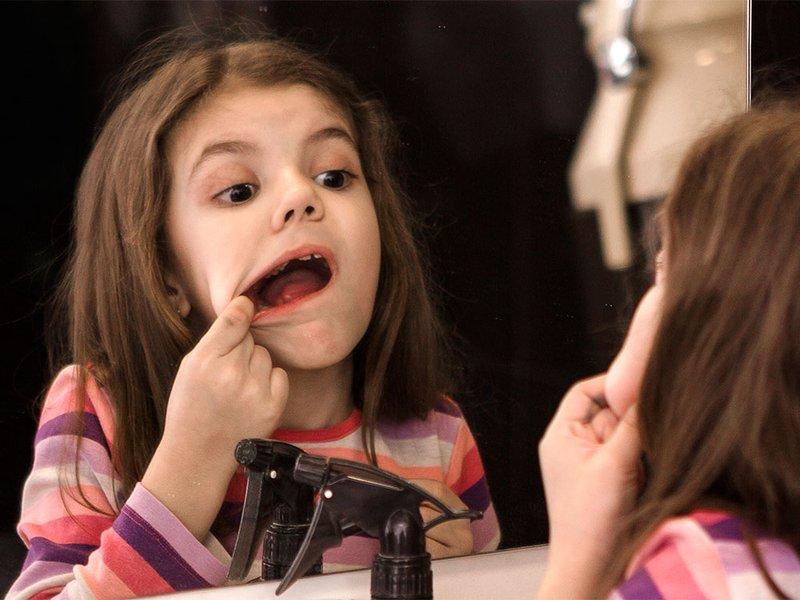 Waspada Moms, Herpes Mulut pada Anak Bersifat Kambuhan