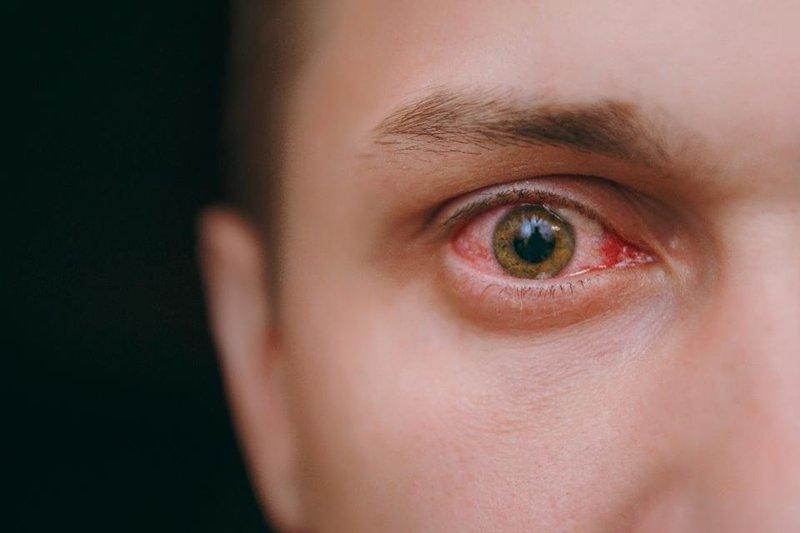 Waspadai Komplikasi Akibat Radang Kelopak Mata