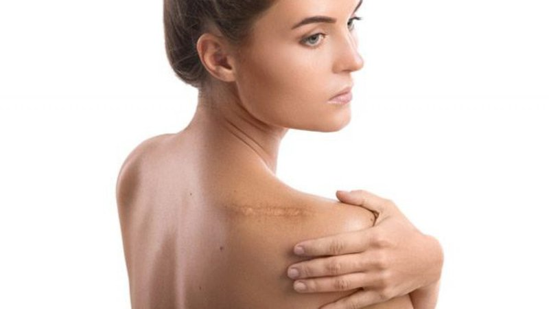 Ways-To-Get-Rid-Of-a-Keloid-Scar-1280x720.jpg
