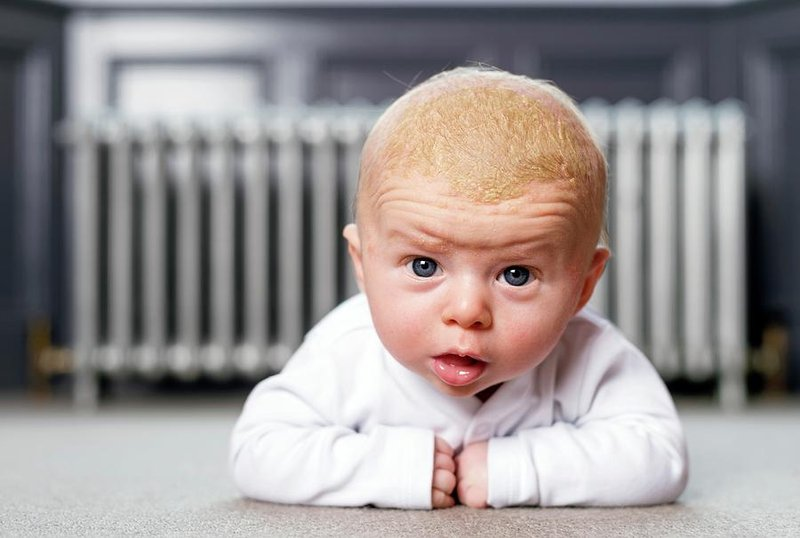 6 Jenis Ruam yang Umum Terjadi Pada Bayi 1