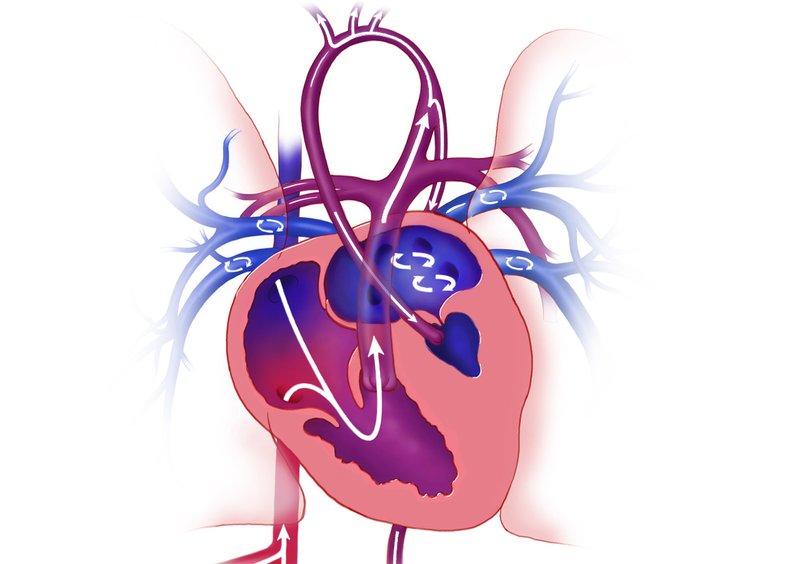 XX Kelainan Jantung Bawaan Pada Bayi, Moms Sudah Tahu? 12