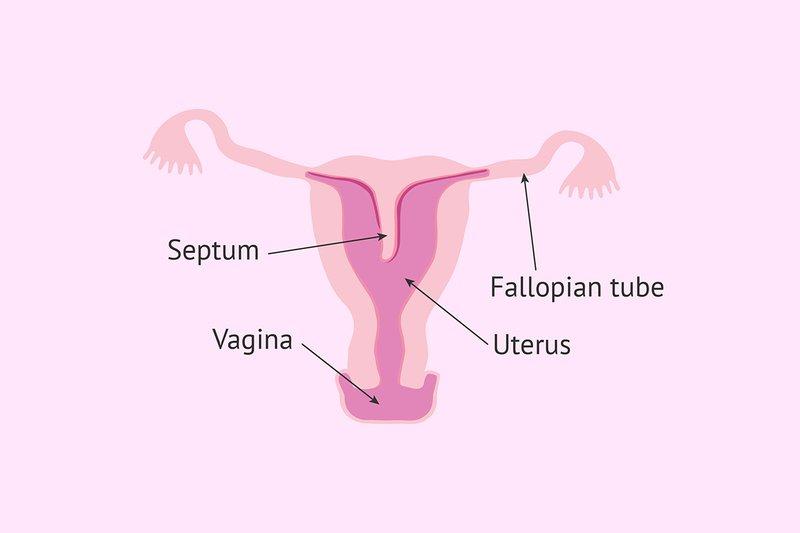 XX Kelainan Rahim Yang Sering Terjadi Pada Perempuan 4