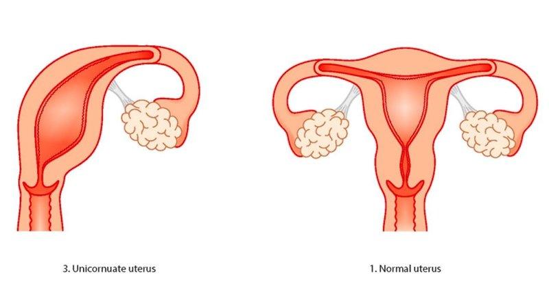 XX Kelainan Rahim Yang Sering Terjadi Pada Perempuan 2