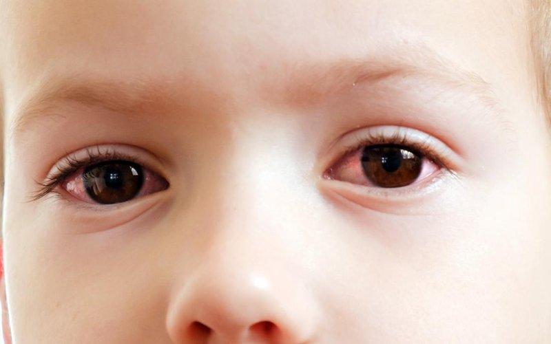 penyakit mata pada anak