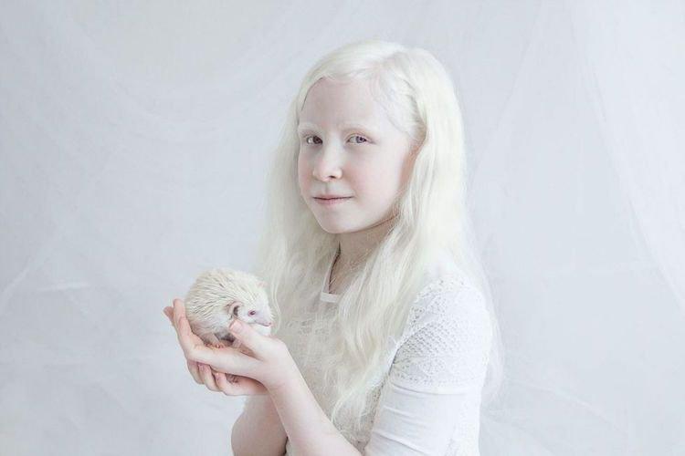 penyakit albino, kondisi albino