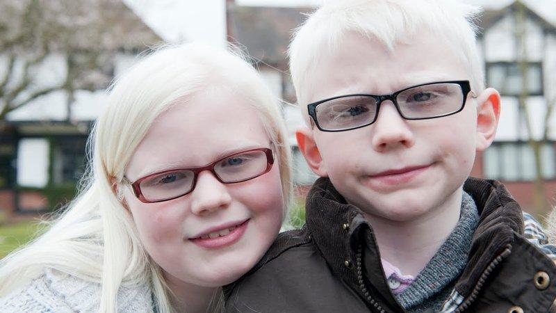 anak albino-1.jpg