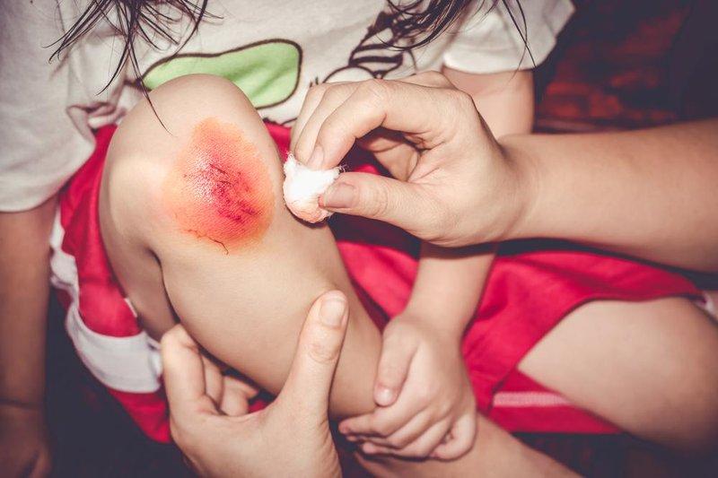 anak luka