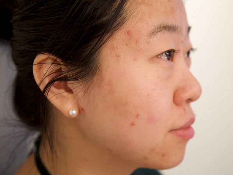 aneka masalah kulit yang dialami trimester pertama kehamilan 02