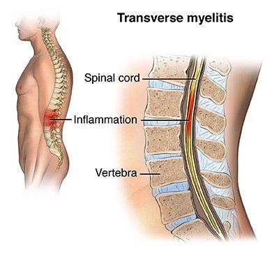 xx fakta transverse myelitis, penyakit yang muncul setelah relawan uji vaksin coronaxx fakta transverse myelitis, penyakit yang muncul setelah relawan uji vaksin corona