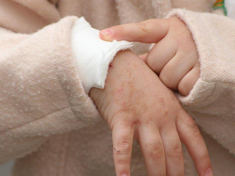 Perawatan Luka Bakar pada Si Kecil