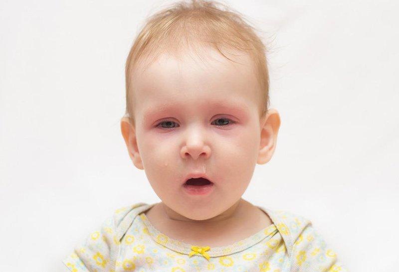 bayi bisa terkena komplikasi sinusitis, waspadai gejala ini 4