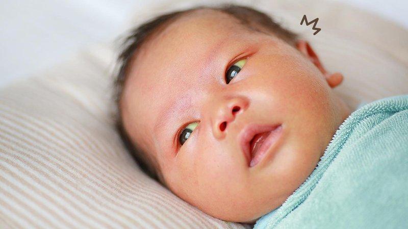 bayi mata kuning artikel hero (3)