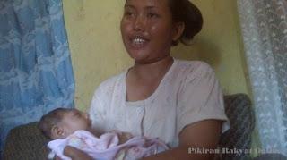 bayi tanpa tempurung kepala