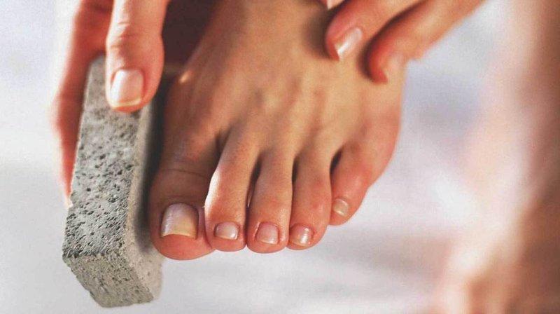 menghilangkan bekas luka di kaki, bekas luka, bekas luka di kaki