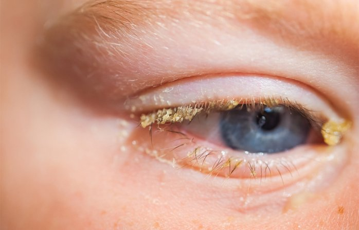 infeksi mata pada anak