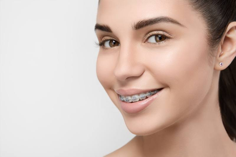 braces benefits.jpg