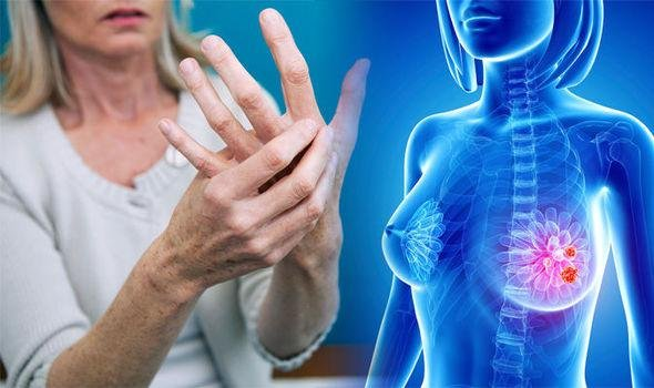 breast cancer symptoms watch out for this sign in your arm or hand 1014368