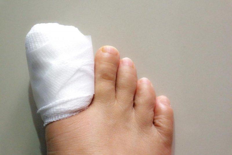 cantengan di perban - medicalnewstoday.com.jpg