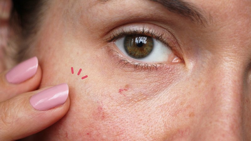 cara menghilangkan urat di wajah
