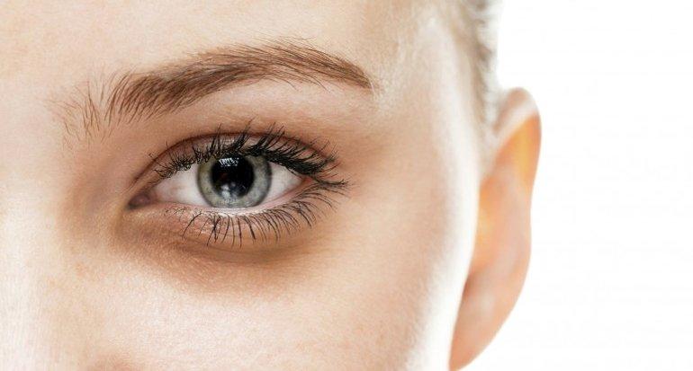 Mengurangi Lingkar Hitam pada Mata