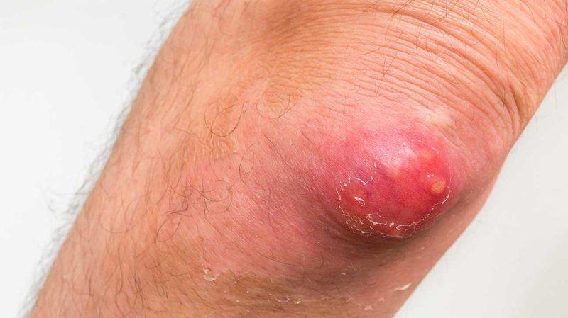carbuncle_elbow-1296x728-slide2.jpg