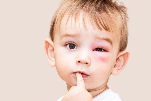 Perlu Tahu, Ini Tanda-Tanda Alergi Kedelai Pada Bayi