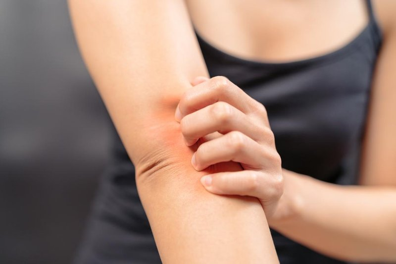 dermatitis seboroik, dermatitis atopik