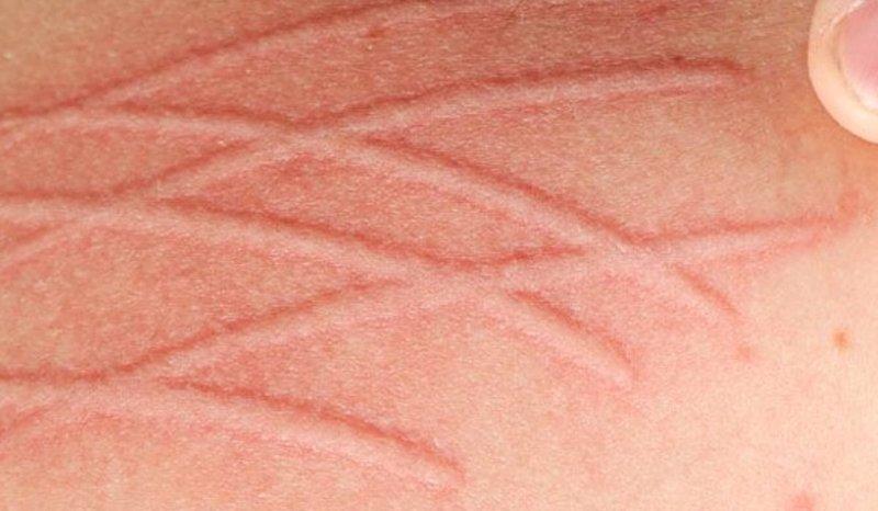 dermatographia hives.jpg