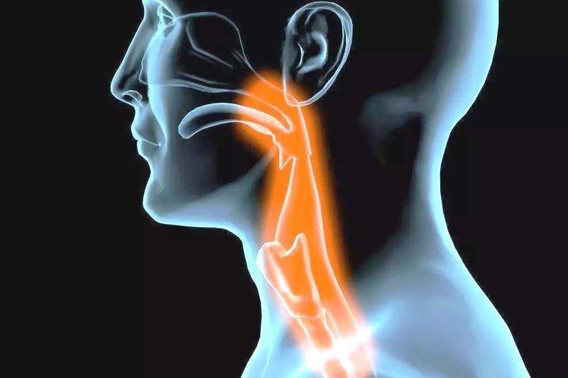 disfagia (kesulitan menelan) - gejala - 1.jpeg