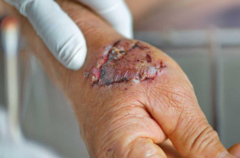 dog-bite-laceration.jpg