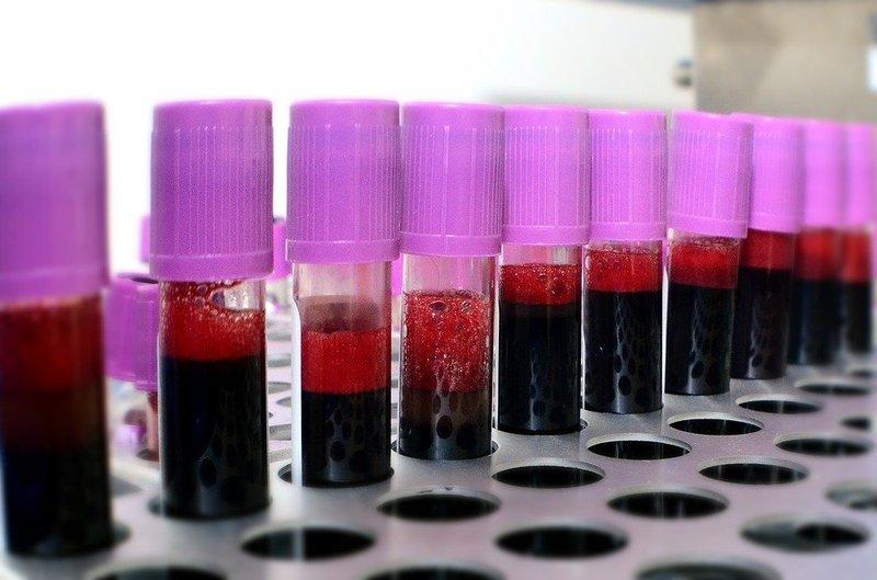 donor darah - pemeriksaan kesehatan (pixabay).jpg