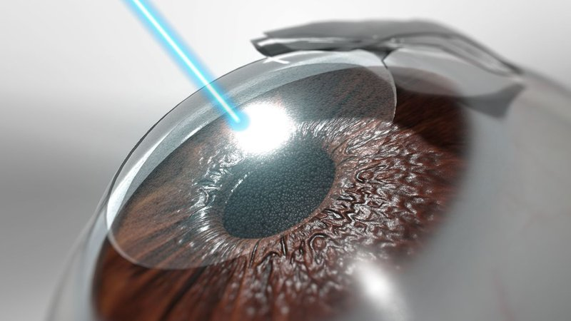 Operasi LASIK Mata