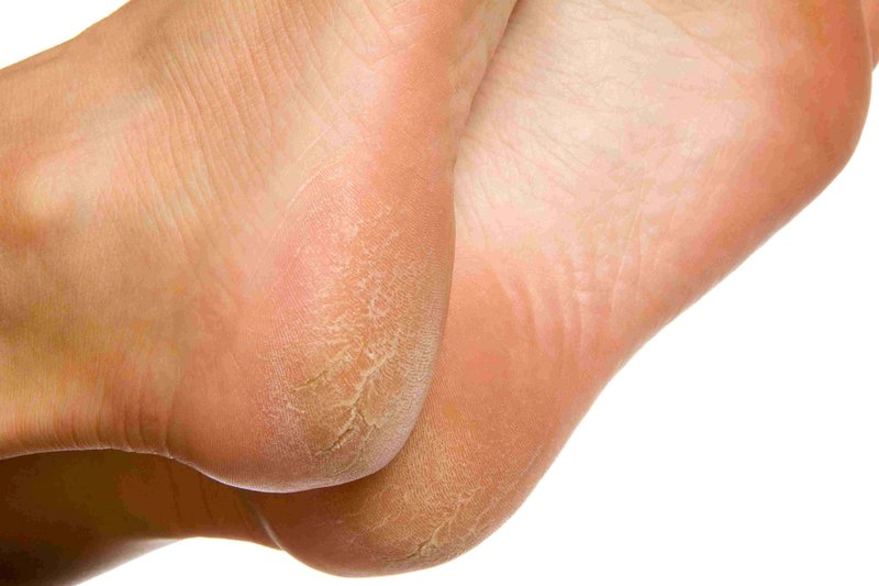 dry-and-cracked-soles-of-feet-on-white-background-157437956-5bfd7dee46e0fb005182040a.jpg