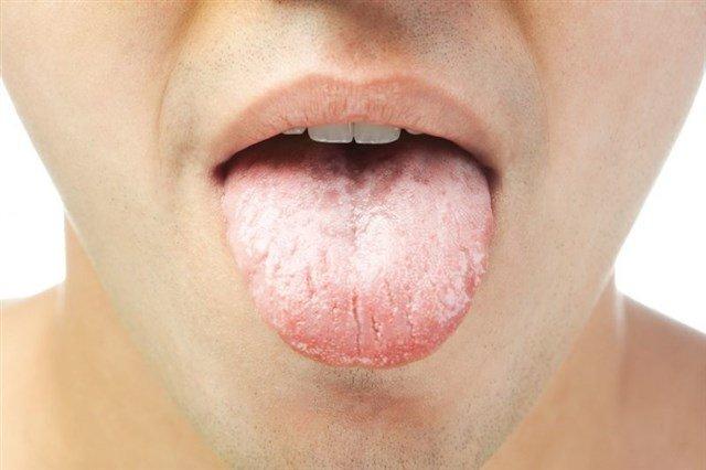 mulut terasa pahit