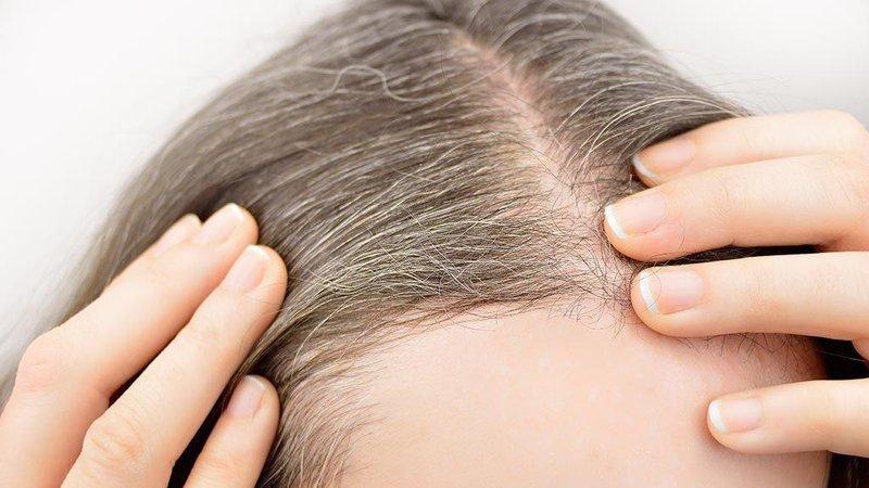 early signs hair loss post image 2 1024x576