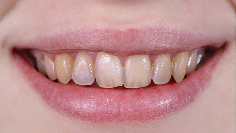 efek samping cuka apel - erosi gigi.jpg