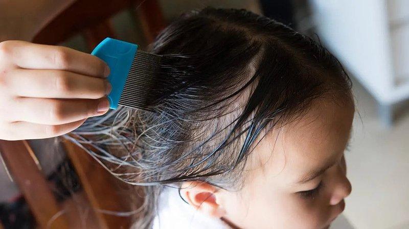 Ketahui Hal Berikut ini supaya Anak Tidak Tertular Kutu Rambut