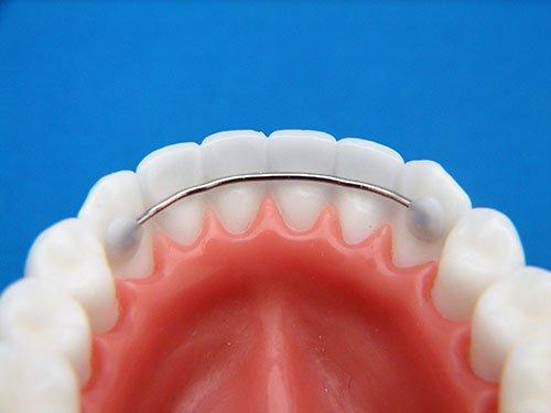 Retainer gigi permanen