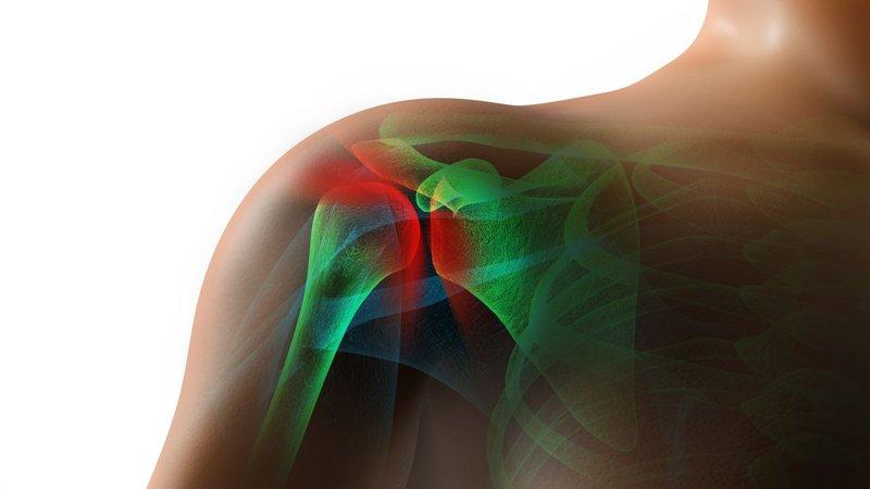 frozen shoulder-1.jpg