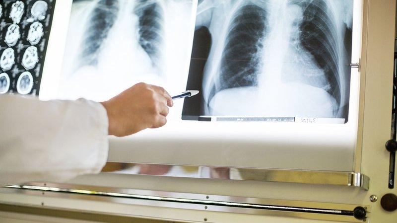 fungsi paru-paru-3.jpg