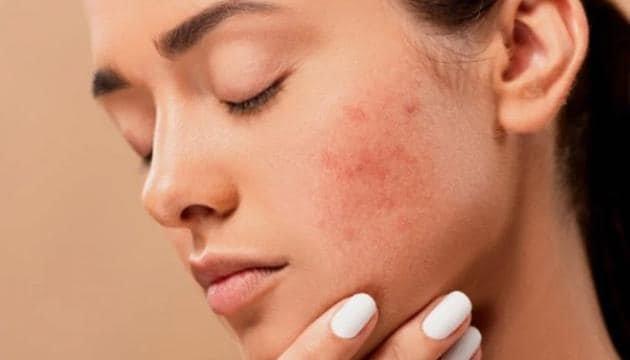 gejala iritasi kulit wajah.jpg