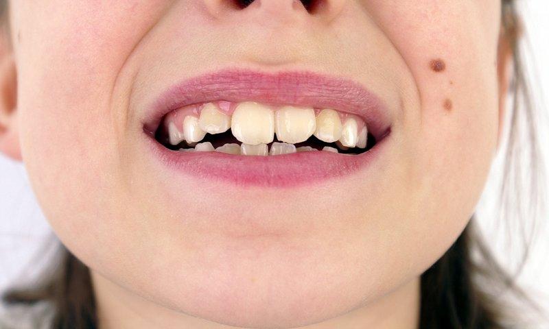 gigi tidak rata veneer gigi pada anak.jpg