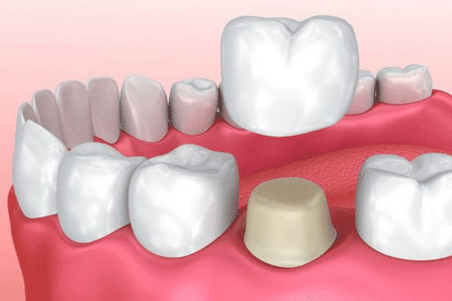 merawat gigi berlubang
